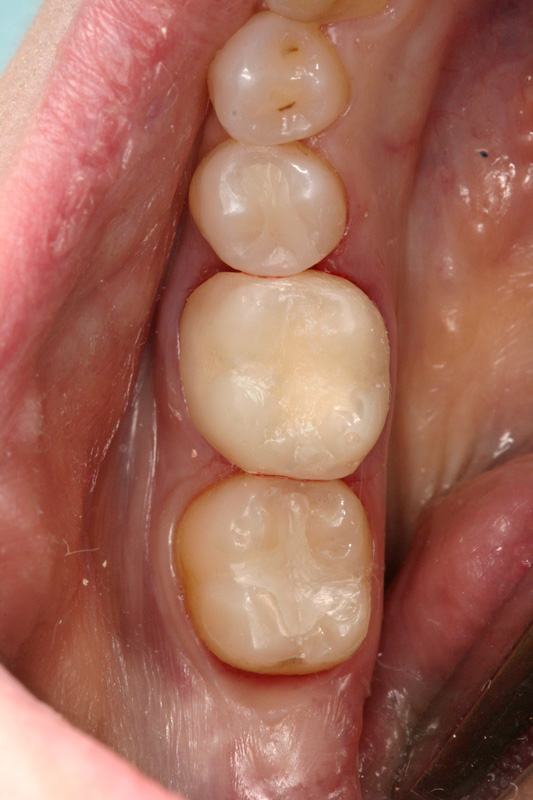 Crown and filling patient step 7