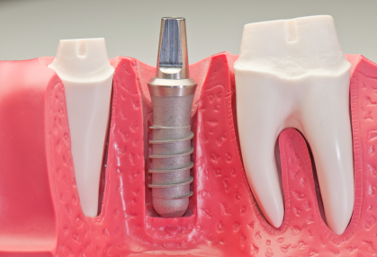 Dental implant model Dentist Salem Oregon
