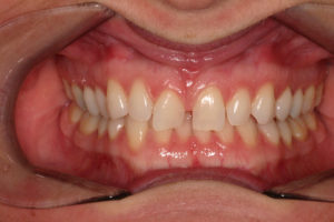 Invisalign Patient Before Hunsaker Dental
