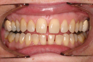 Invisalign Patient Before Dentist Salem Oregon Hunsaker Dental
