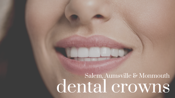 Salem, Aumsville, Monmouth Dental Crowns