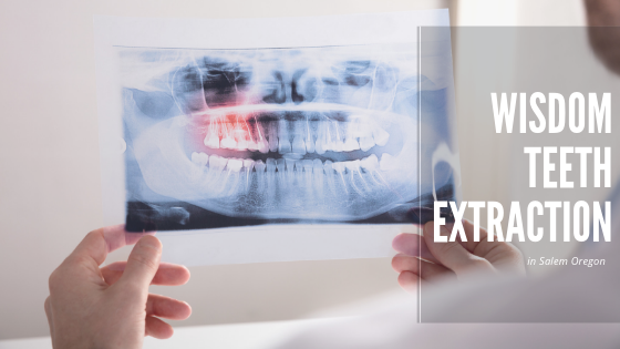 Wisdom Teeth Extraction in Salem Oregon