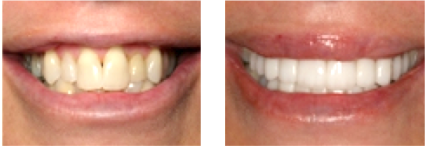 Salem, OR person smiling for a before and after image of the dental work provided by Hunsaker Dental